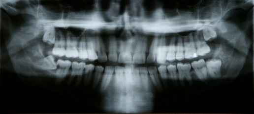x-ray of mouth